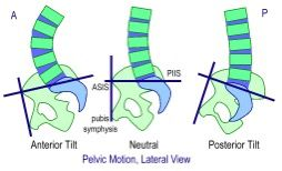 pelvis-anteversion