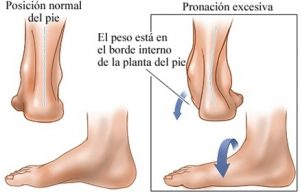 rodilla tendon